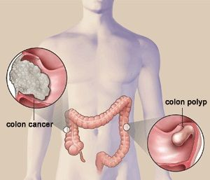 Colon Rectal Cancer